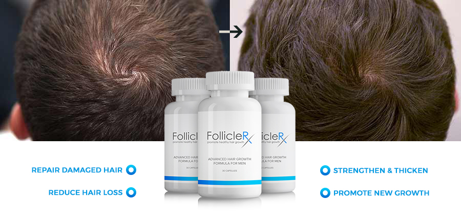 Follicle Rx Revisión