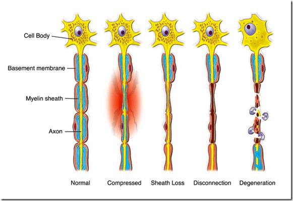 Nerve Renew - Renueva el nervio Review